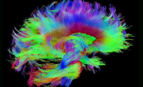Brain image from magnetic resonance imaging (MRI) data