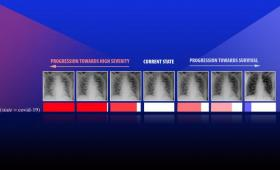X-ray images COVID patient