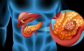 Artist's conception of pancreas.